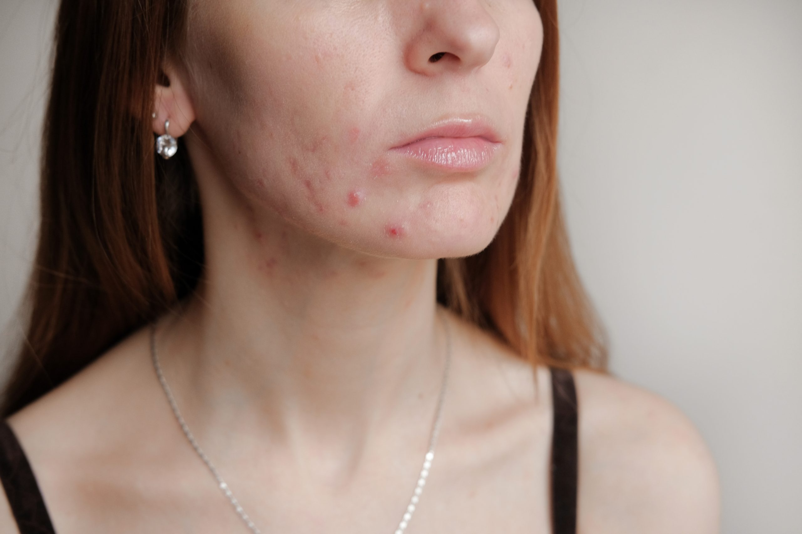 Máscara facial e espinhas: dermatologista explica a relação