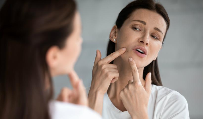 Acne na mulher adulta: entenda a razão e como cuidar
