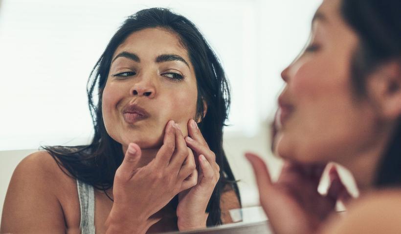 Entenda a razão e como cuidar da acne na mulher adulta