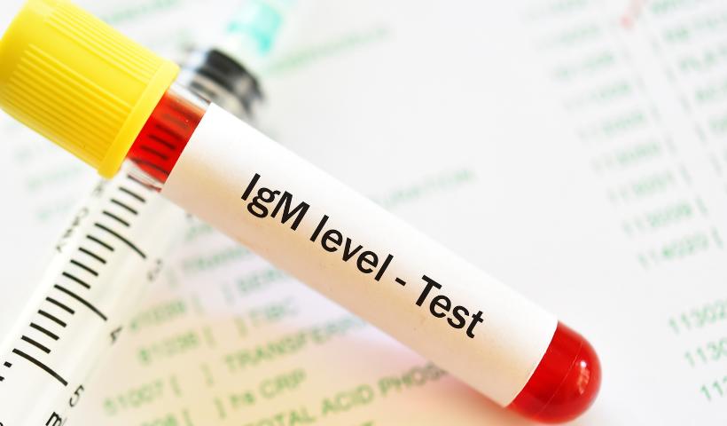 Diagmax faz testes de sorologia IGM e IGG no RioMar