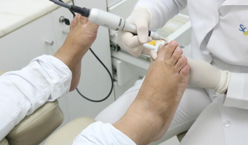 Saúde dos pés: conheça os serviços da Sr.Pé